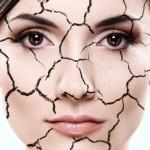 Nguyên nhân khiến da khô nứt nẻ trong mùa đông